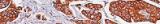 Acid Fushin Orange G (AFOG) stain