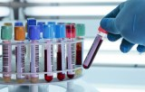 Direct PCR on blood samples