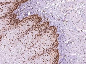 New antibodies for diagnostic = free samples