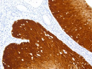 Try our new p16 antibody