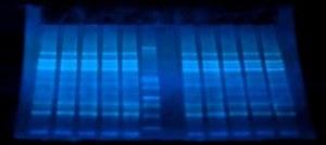 Visualisation des protéines par UV dans les gels pré-coulés nUVIEW
