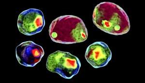 Compteur et analyseur de cellules avec 50% de réduction