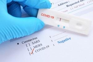 SARS-CoV-2 (Covid-19) : Test Rapide IgG/IgM pour le diagnostic